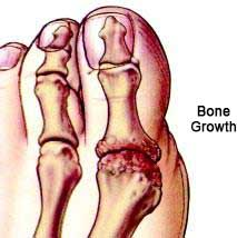 Arthritic Big Toe Joints in Orlando